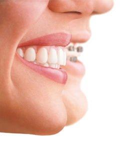 Ortodoncia Damon Precio