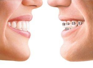 Ortodoncia precios